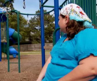Obèses : perte de poids extrême replay